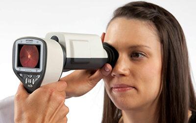 Fundus kamera Smartscope PRO